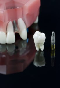 dental implants mouth mold