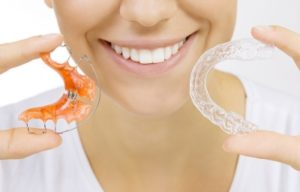 retainer-and-clear-aligner